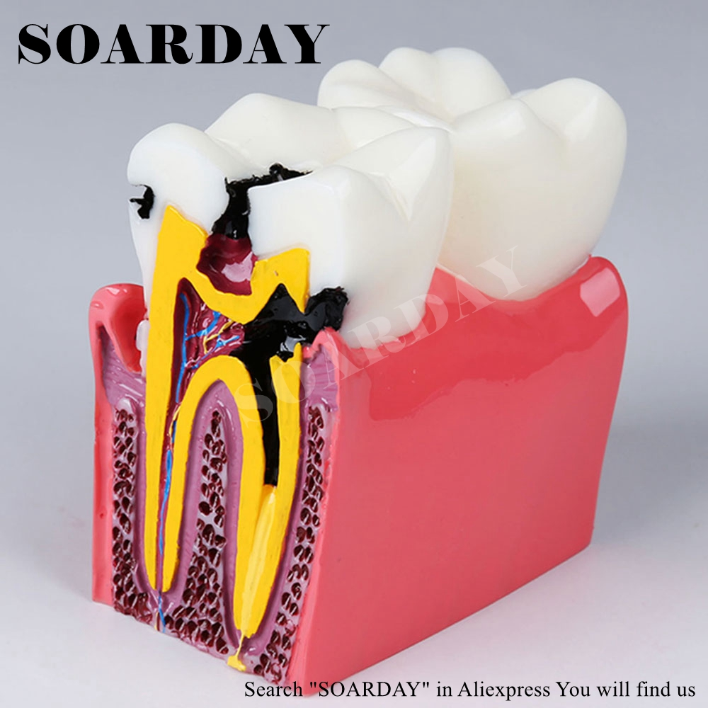 SOARDAY Six times Caries Comparison Model Teaching Demonstration Communication Oral Model Pathological Dental Model teeth model blue dental orthodontics communication model with 4 types of brackets