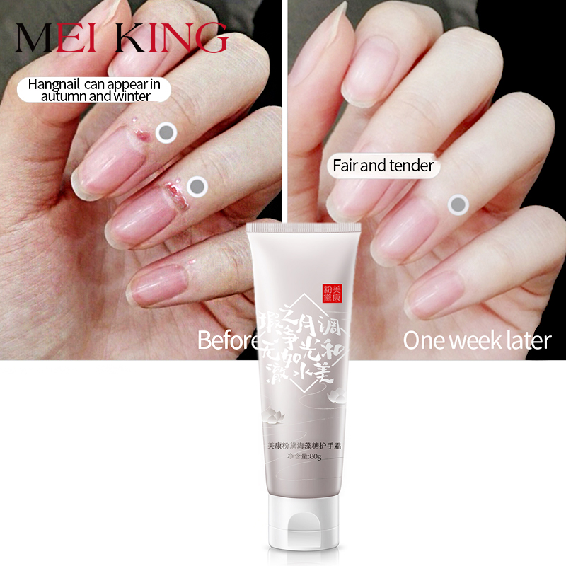 MEIKING Moisturizing Trehalose Hand Cream Hydrating Hand Lotions Nourishing Anti-Aging Cream for Man Women Hand Care Whitening