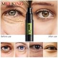 MEIKING Hyaluronic Acid Collagen Crystal Gel Eye Serum Anti-Wrinkle Remover Dark Circles Eye Essence Against Puffiness Whitening