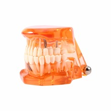 Orange Color 1PC Dental Implant Disease Teeth Model Orange Removable Study Teaching Teeth Model for Medical Science Teaching