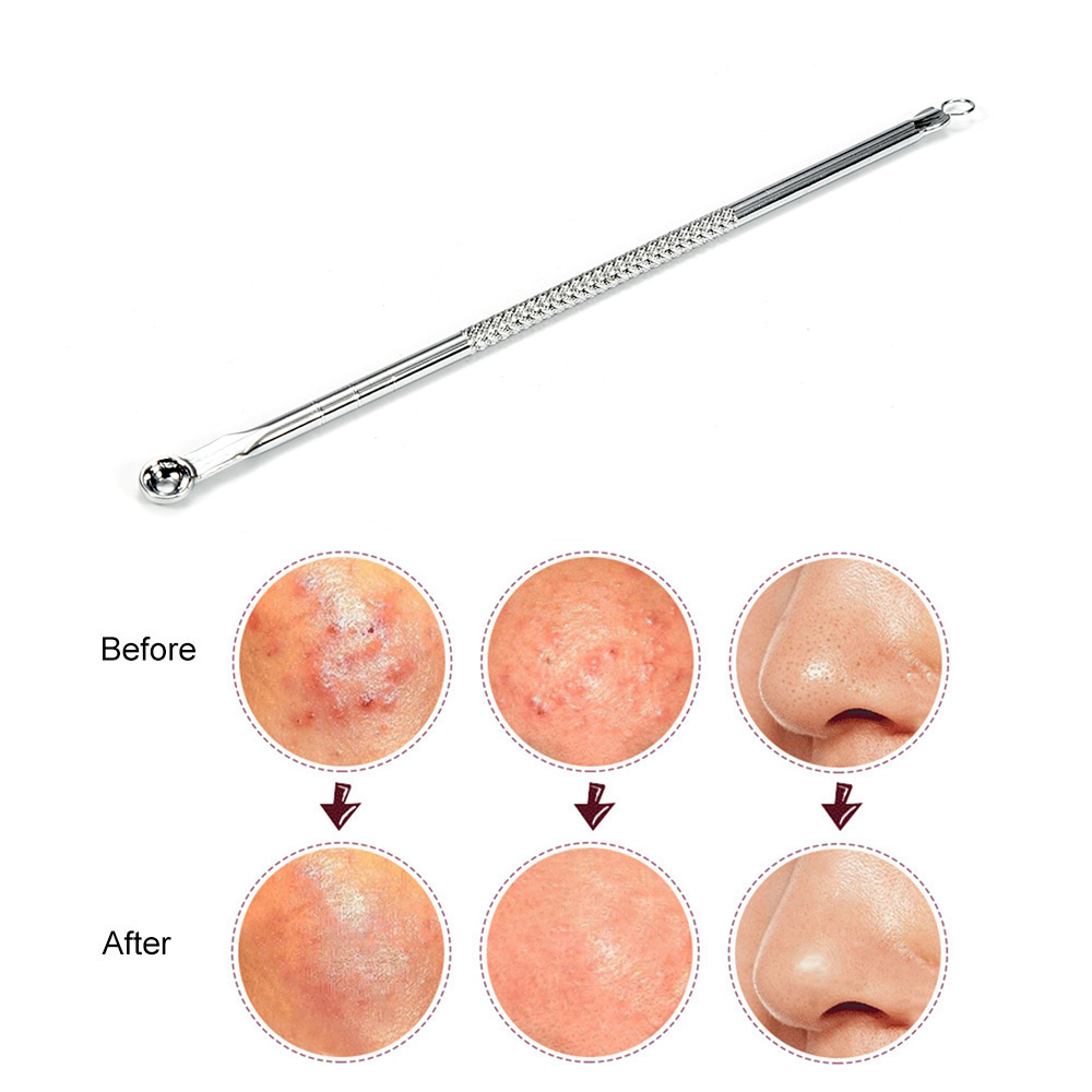 ELECOOL 1pc Blackhead Removal Pimple Blemish Comedone Acne Extractor Remover Stainless Needles Remove Tool  U