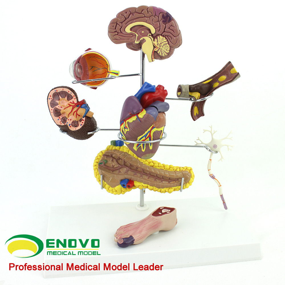 ENOVO Authentic Medical Human Medicine Diabetes Model Head and Heart Pancreatic Neuron Model Internal Surgical Anatomical Model iso median section of head model anatomical head model