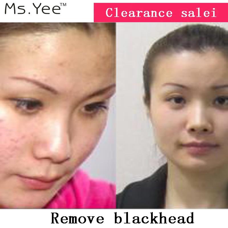 Nettoyez les pores et clarifiez la peau Huile essentielle 100% pure - Soins de la peau