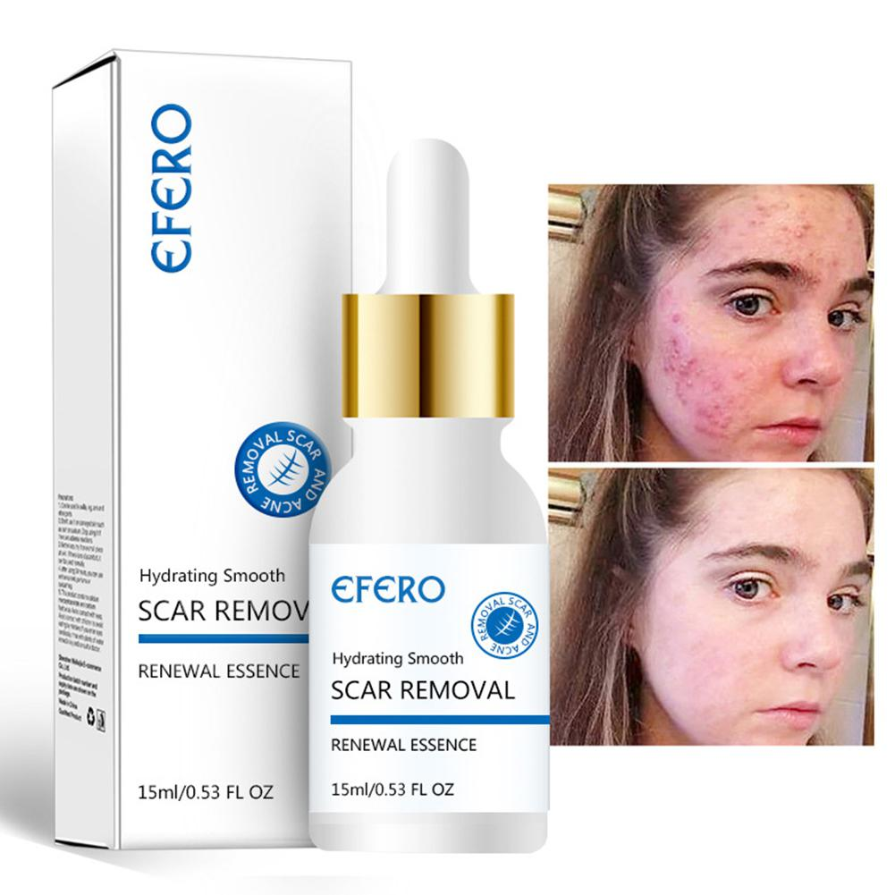 Anti-Wrinkle Moisturizing Acne Fine Pore Rejuvenation Essence Solution Repair Lifting Firming Skin Face Care image