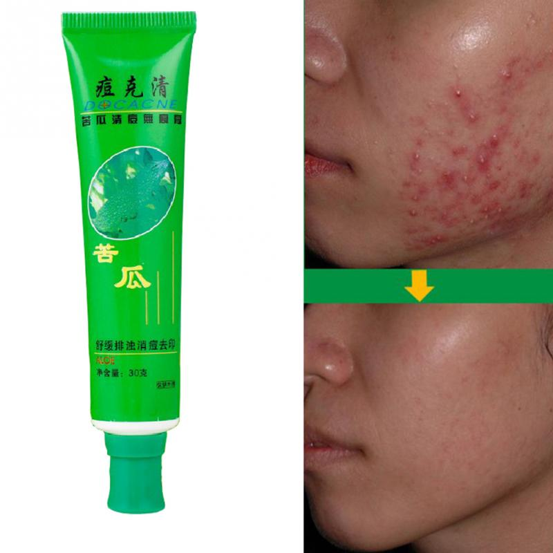 30g Face Skin Care Unisex Adult Skin Care Anti-Acne Cream Ointment Acne Removal Unguent Acne Treatment And Scar Repair