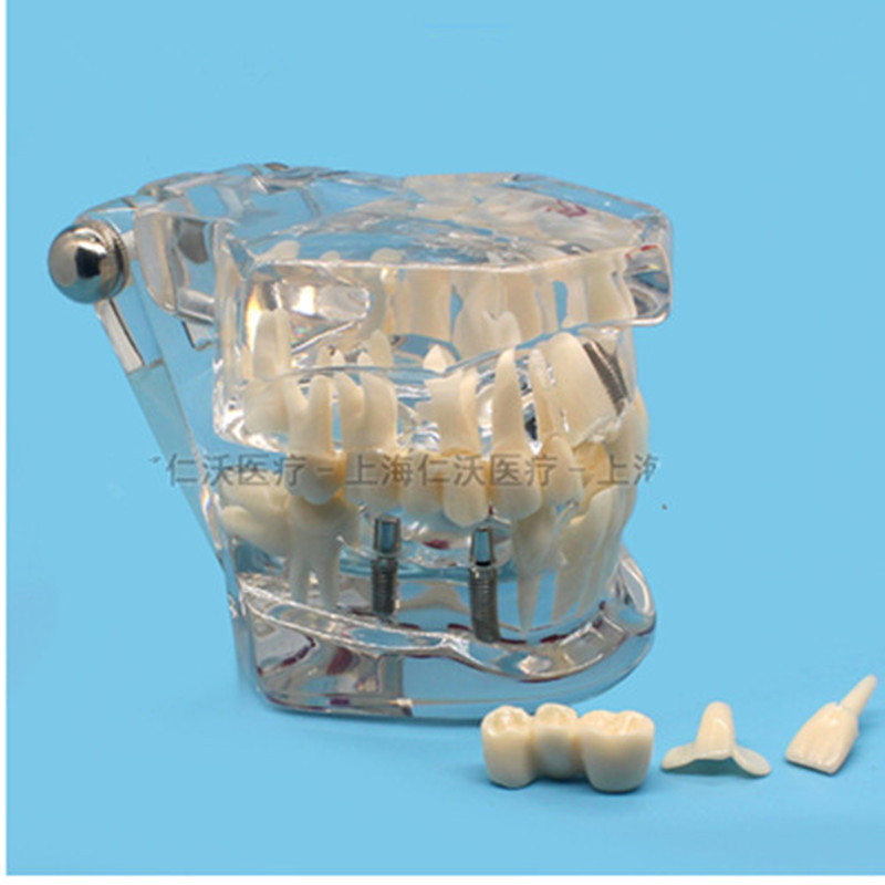 Various-Dental-Teeth-Models-Are-Used-For-Teaching-And-Hospital-Dentist-Material.jpg_640x640 (1)_