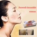 Chinese Medicine security Antibacterial cream Psoriasis Eczema Ointment Cream Suitable All Skin Diseases Eczema Treatment
