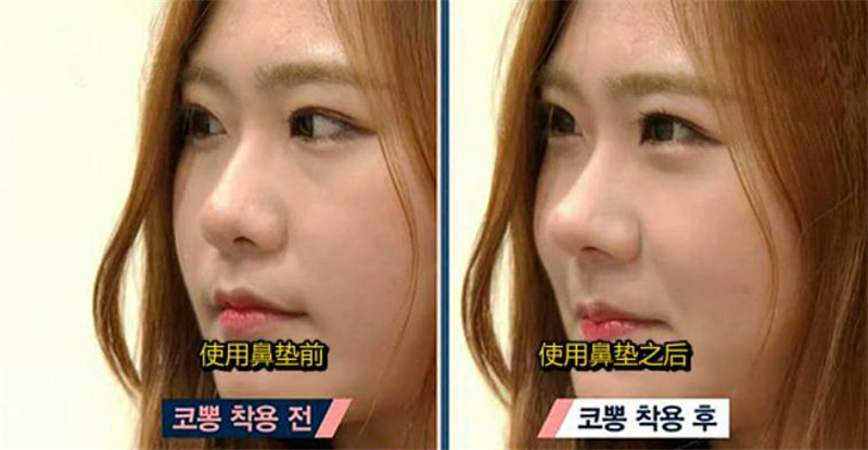 3D nose straightener19