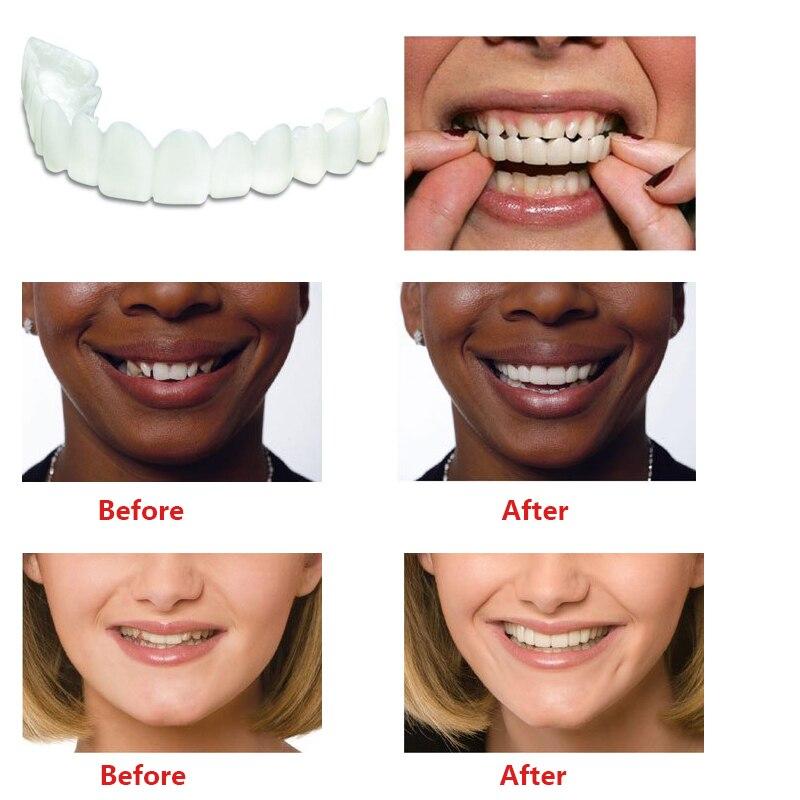 Snap On Teeth Care Cosmetic Secure Instant Natural Upper Veneer Dental False Tooth Perfect Smile Veneers Teeth Whitening 4