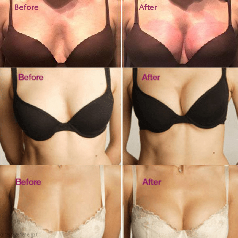 1Pair Instant Magnetic Therapy Bra Inserts Bust Enlargement Lift Bust