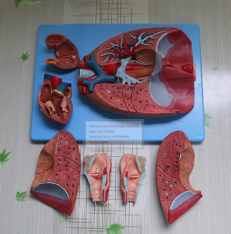 Larynx Heart And Lungrespiratory System Anatomical Modelthroat