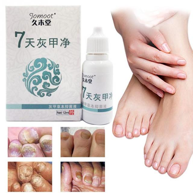 New Toe Nail Fungus Treatment Anti Fungal Nail Infection Yellow ...