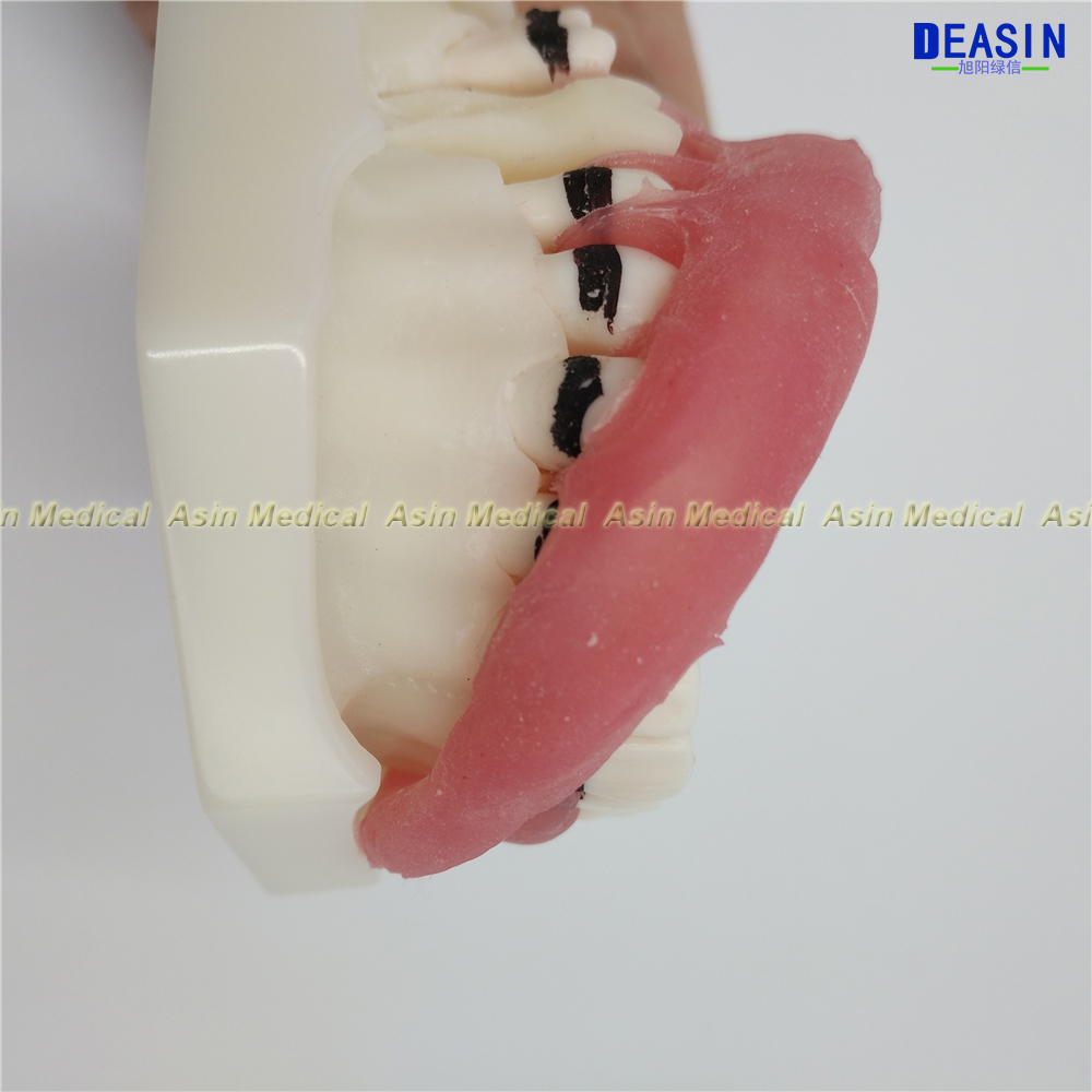 de doenca periodontal dente modelo medico 05