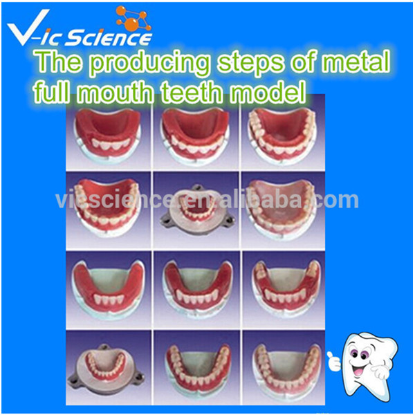 The producing steps of metal full mouth teeth model interactions between siderophore producing microorganisms