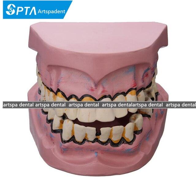 أمراض الأسنان تسوس نموذج التدخين تسوس الأسنان نموذج زرع الأسنان أسنان ل  دراسة تعليم العلوم الطبية
