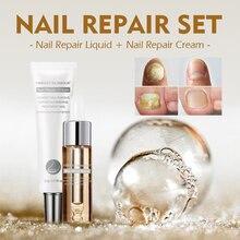 Get more info on the VIBRANT GLAMOUR Nail Care Set Nail Repair Cream Anti Fungus Nail Toe Repair Serum Nail Fungus Treatment Onychomycosis Removal