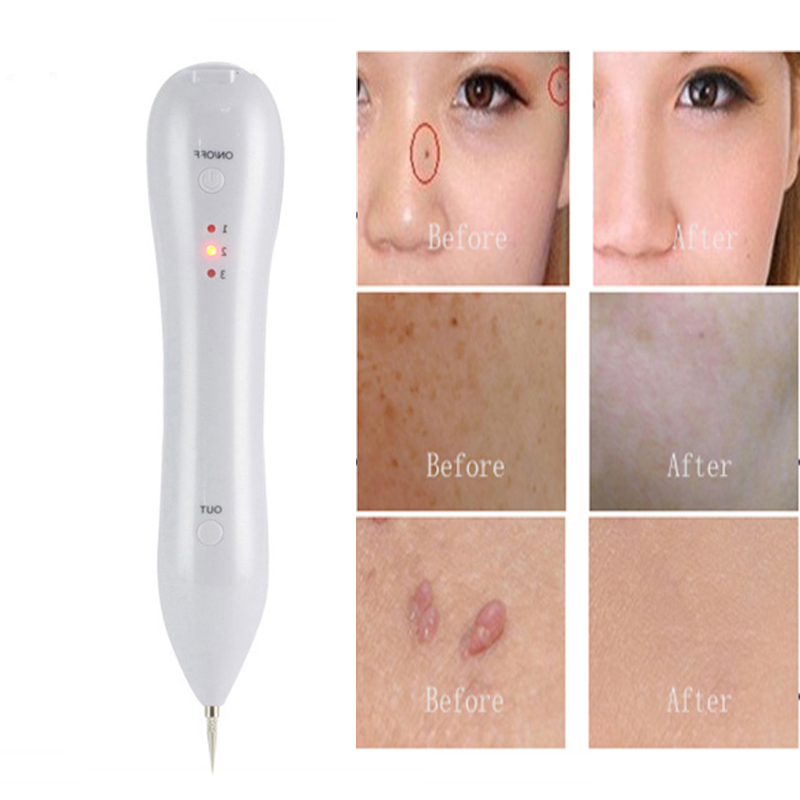 freckles removal machine