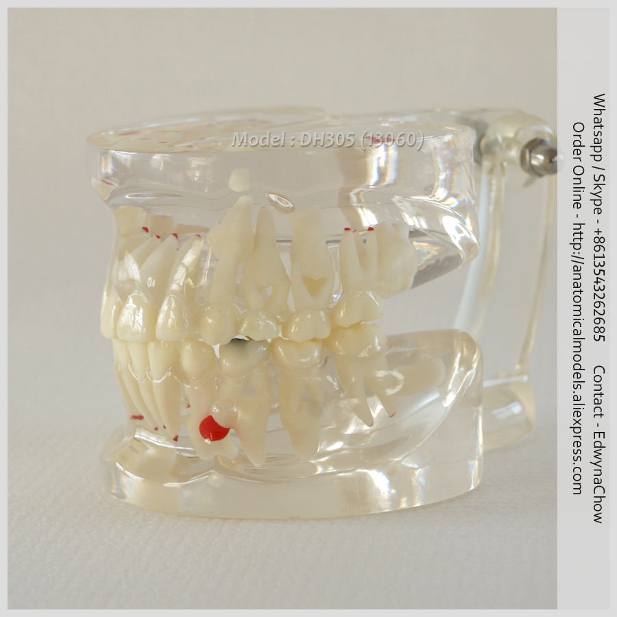 13060 DH305 Human Clear Mixed Age model Dental Model, Medical Science Educational Teaching Anatomical Models