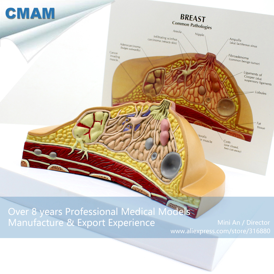 CMAM-ANATOMY23 Breast Cancer Cross Section Training Manikin Model,  Medical Science Educational Teaching Anatomical Models cmam a29 clinical anatomy model of cat medical science educational teaching anatomical models