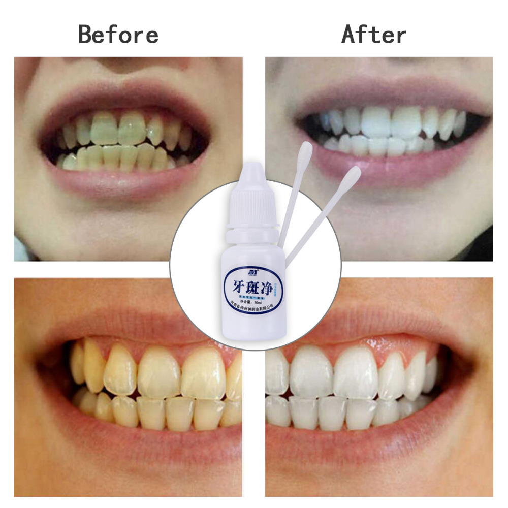 New 10ml Teeth Whitening Water Oral Hygiene Cleaning Teeth Care Tooth Cleaning Whitening Water Remove plaque Dental Odontologia