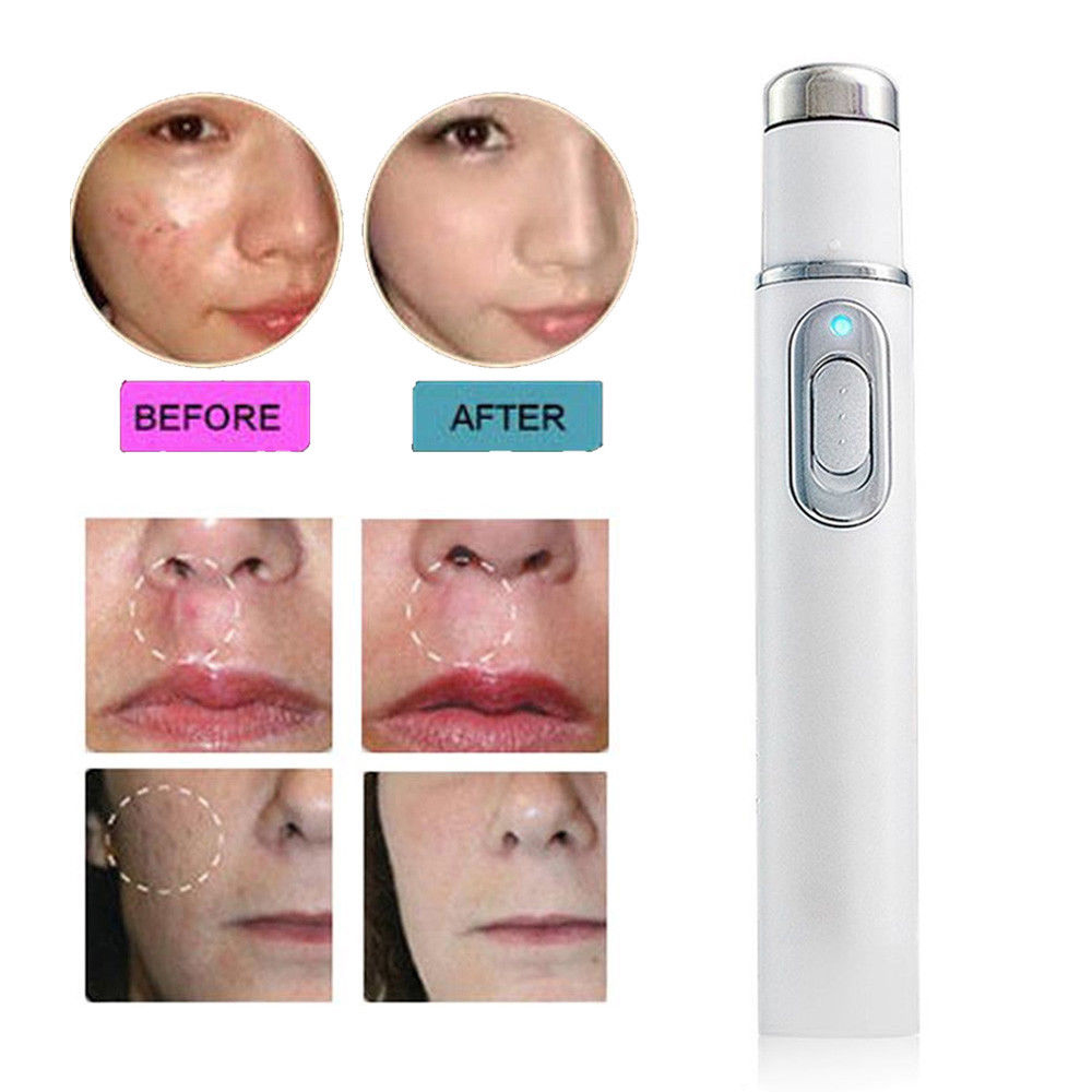 Hot Blue Light Therapy Pen Acne Treatment Device Laser
