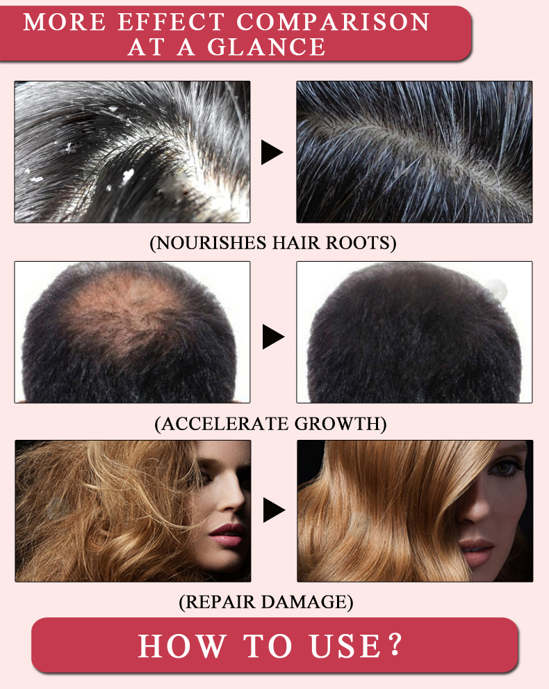 Fast Powerful Hair Growth Essence Hair Loss Products Essential Oil Liquid Treatment Preventing Hair Loss Hair Care Products 20ml 6