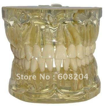 Transparent tooth extraction model,transparent jaw model with teeth,Free shipping