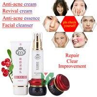 Liang Bang Su Professional Whitening Cream For Face Anti Freckle Face Cream 100 Original