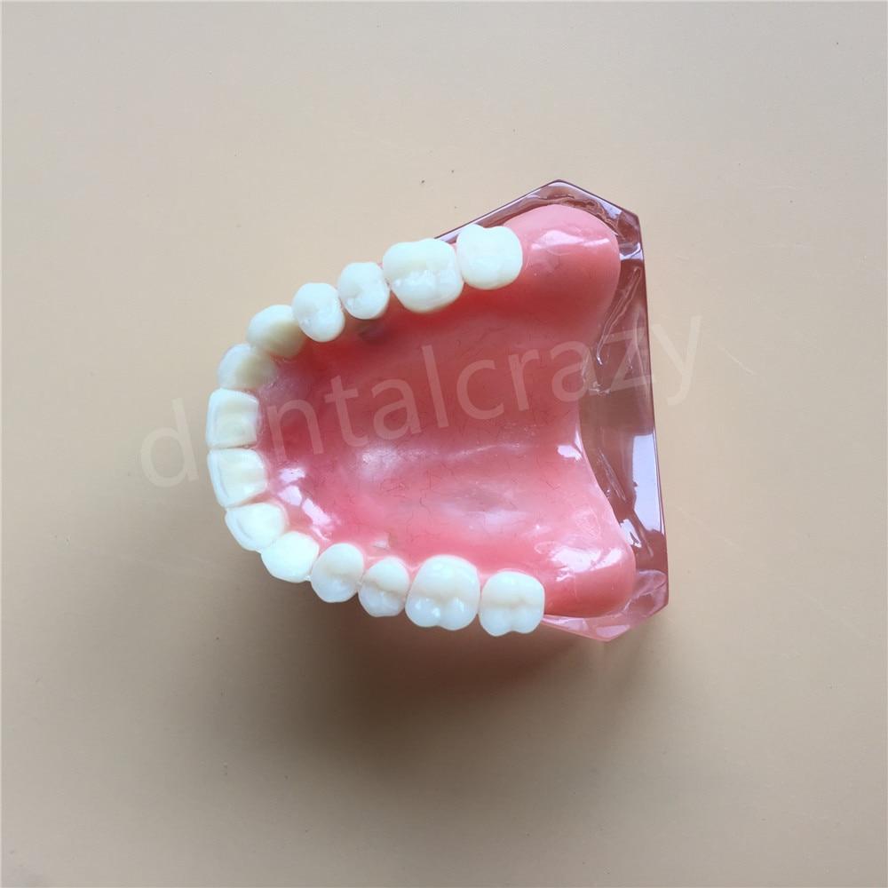 Dental Study Model - Overdenture Superior with 4 Implants Demo Model #6001 01 Teeth Model science of dental implants