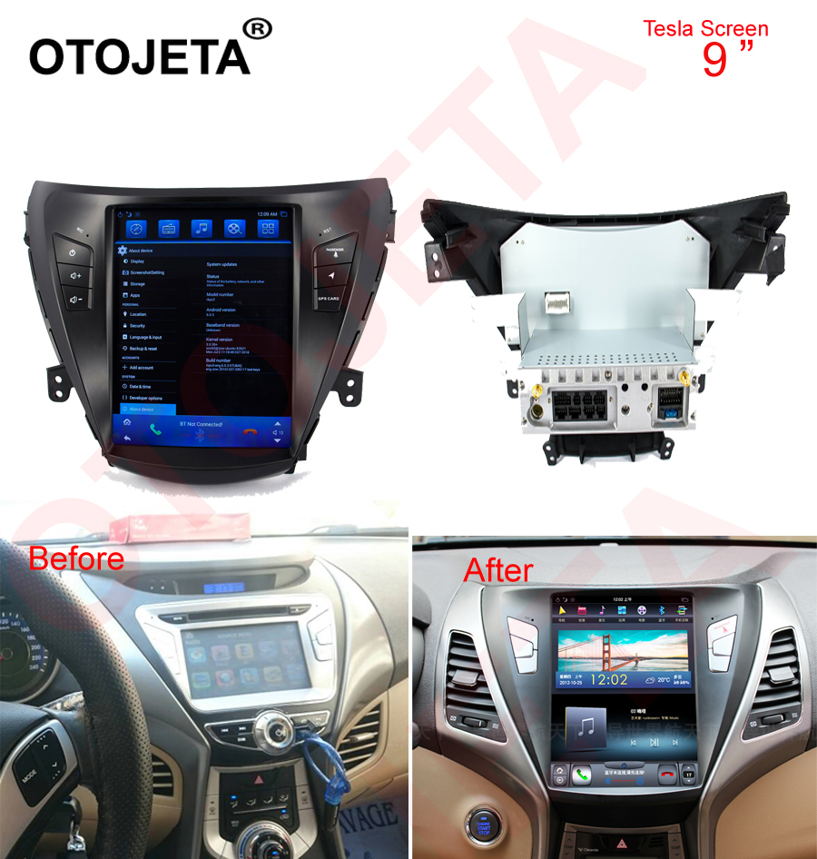 Otojeta Vertical Screen Tesla Head Units Quad Core 32gb Rom Android 7.1 Car Multimedia GPS Radio Player For Hyundai Elantra 2011