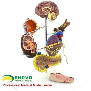 human model Human medical diabetes model complications Cerebral cardiac pancreas neuronal foot surgery free shipping