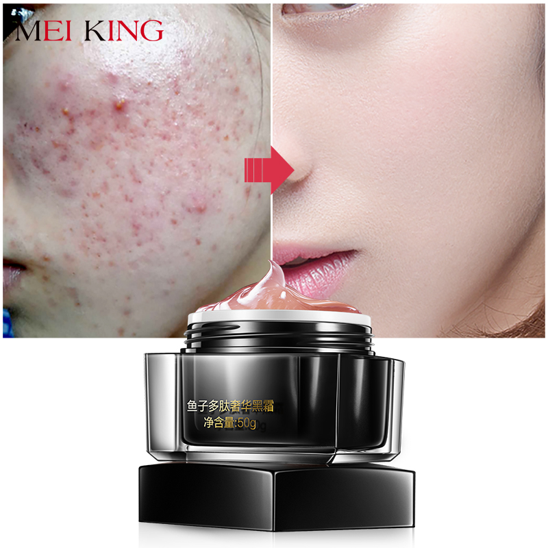 MEIKING Potent Anti Wrinkle Face Cream Anti Wrinkle Day Moisturizer Cream Skin Care Whitening Fish Roe Peptides Black Face Cream meiking poney air cushion bb cream hydrating concealer moisturizer anti aging anti wrinkle oil control perfect cover bb