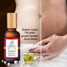 1pc Stretch Marks Removing Essential Oil Maternity Skin Care Treatment Acne Scar Removal Body Treatment Massage Oil Y3