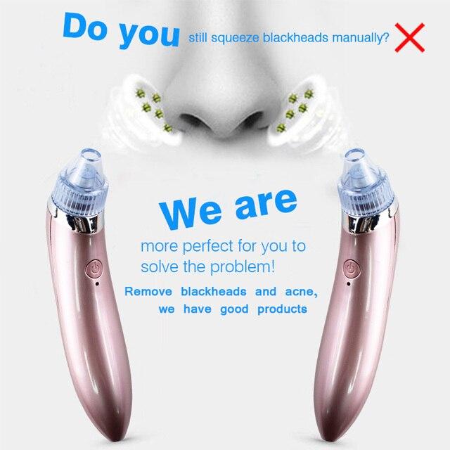 Equipment to suck pores clean