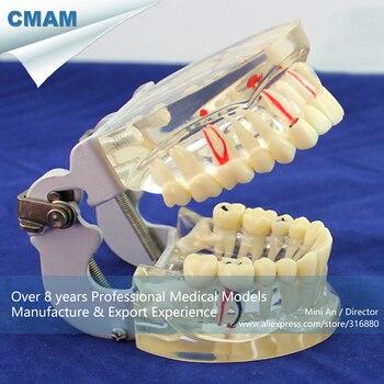 12566 / Human Dental Demonstration Model of Periodontal Caries,  Medical Science Teaching Anatomical Models