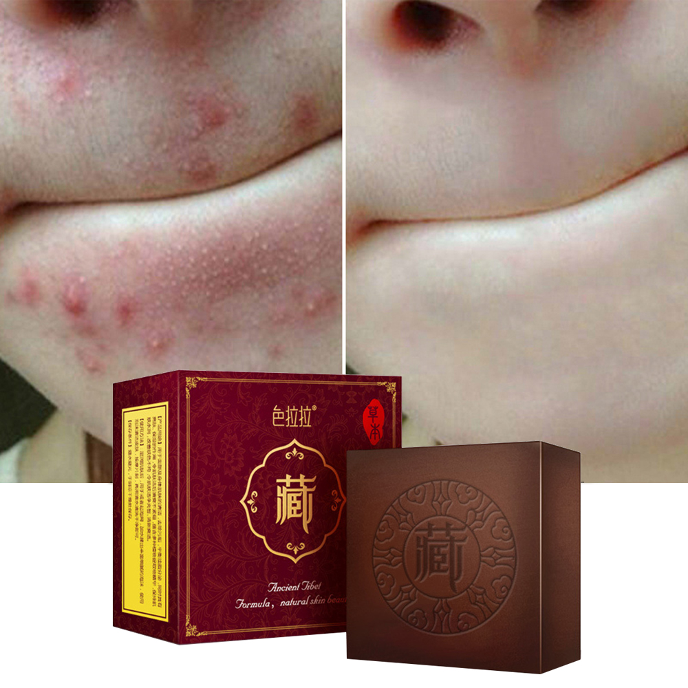 Face Skin Whitening Soap For Remove Blackhead And Oil Control Washing A Face Soap Facial Body Anti Mites Tibetan Medicine TSLM1