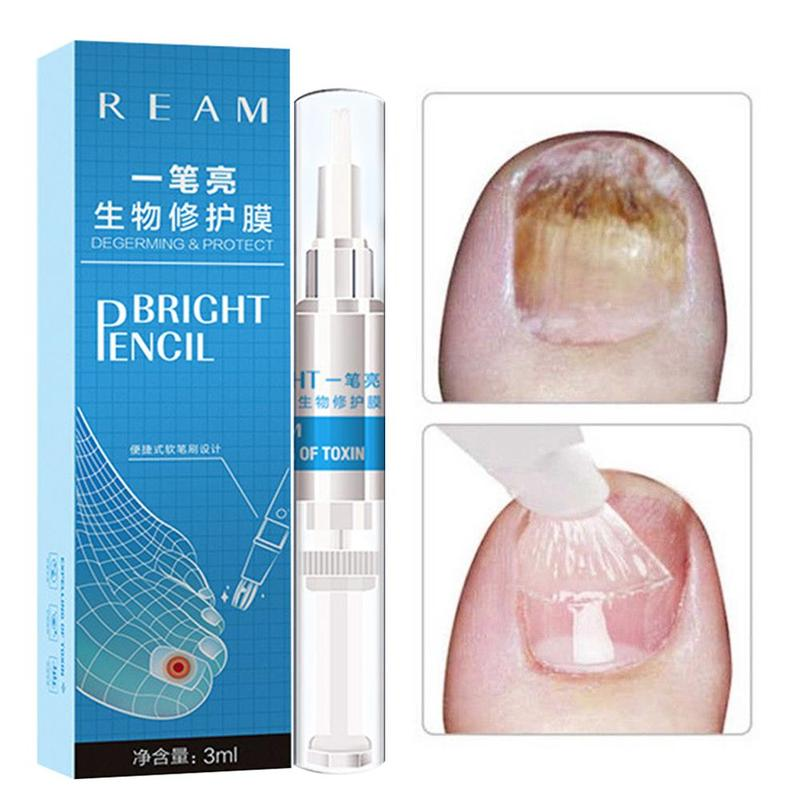 3ml Restores Healthy Nail Solution Anti Fongique Infection Nail Bright Pencil Fungal Treatment Anti Fungus Biological-in Patches from Beauty & Health