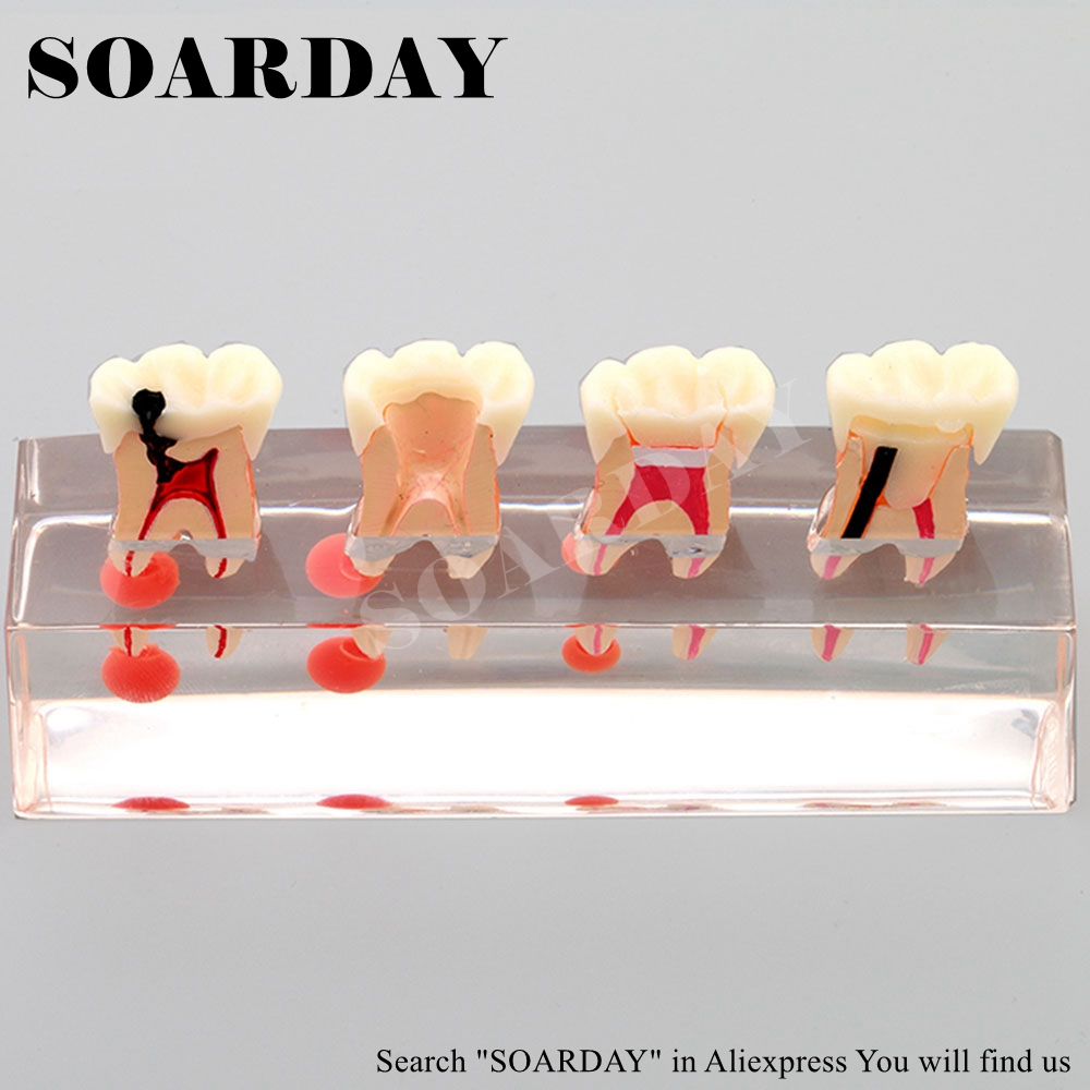 SOARDAY Dental Endodontic Restoration Model Teaching Communication Model Pathological Display Dental Caries sagitally section model about tissue decomposition model for doctor patient communication model with magnetic