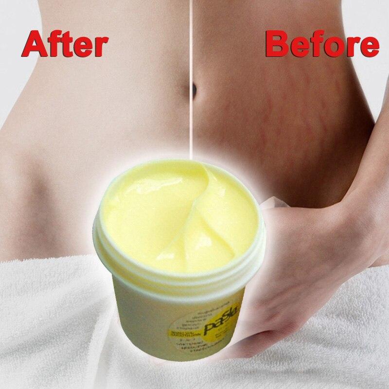 Sets Ausdrucksvoll Thailand Haut Körper Creme Entfernen Dehnungsstreifen Behandlung Postpartale Reparatur Whitening Cream Schwangerschafts Narbe Entfernung Sswell