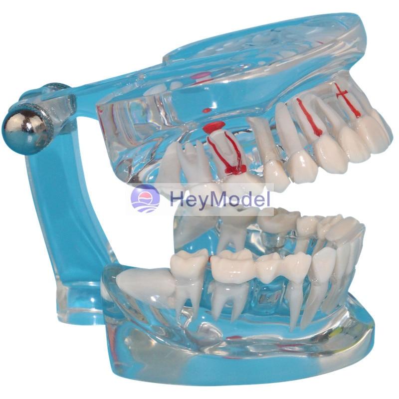 HeyModel Human Teeth with Pathology heymodel human teeth with pathology