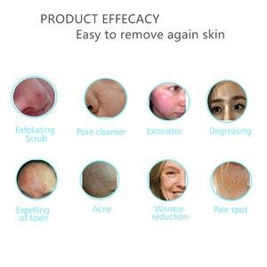 Image 2 - Новый перезаряжаемый ультразвуковой скруббер для кожи, средство для удаления акне и пятен, ультразвуковой пилинг для лица, спа, глубокий очиститель кожи, массажер