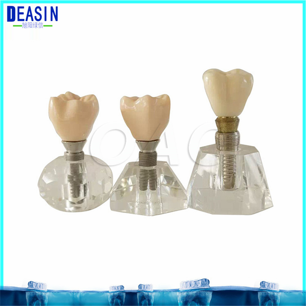 Dental teeth model Crystal Base Hard Plastic Teeth Dental Implant Practice Model MACRO IMPLANT MODEL CROWN BRIDGE soarday 1 piece 2 times dental pathological model implant bridge crown treatment oral teaching model