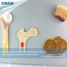 CMAM-JOINT08 Human Different Bones Structure Anatomical Model