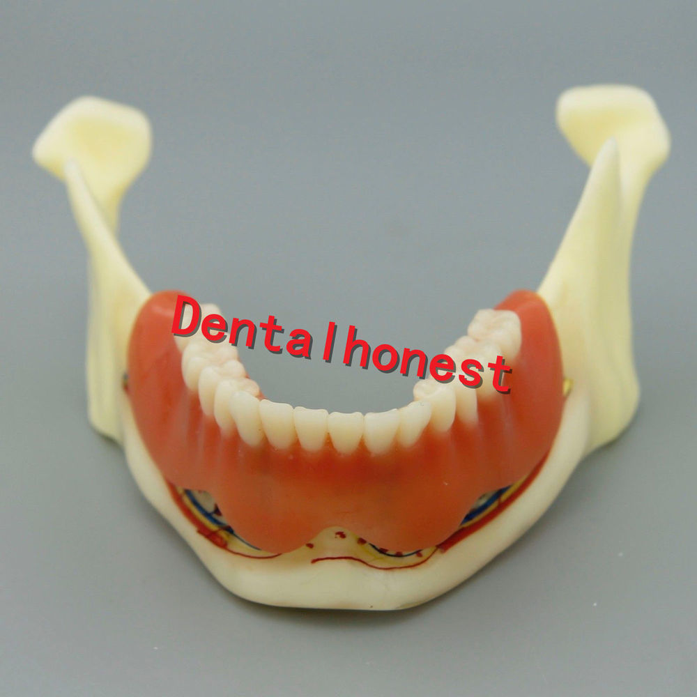 Dental Mandible Implant Overdenture Teeth Model with vessels Demo Model 2014 teeth model blue dental orthodontics communication model with 4 types of brackets