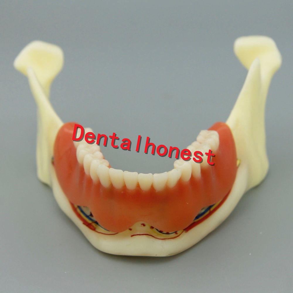 Dental Mandible Implant Overdenture Teeth Model with vessels Demo Model 2014 dental overdenture inferior with 4 implants demo model 6003 study teeth model
