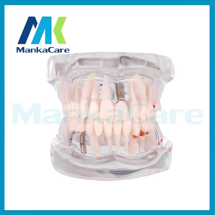 Manka Care - Removable Dental Implant Disease Teeth Model with Restoration Bridge Tooth Dentist for Medical Science Teaching teeth model dental periodontal disease practice dental model with removable gum can
