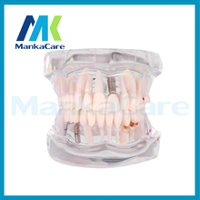 Manka Care – Removable Dental Implant Disease Teeth Model with Restoration Bridge Tooth Dentist for Medical Science Teaching