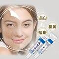 Bioaqua 30g Crema Anti Acné/Control de Aceite/Reducir Los Poros/Acné Cicatrizal Remove/Cara Cuidado de La Piel cuidado