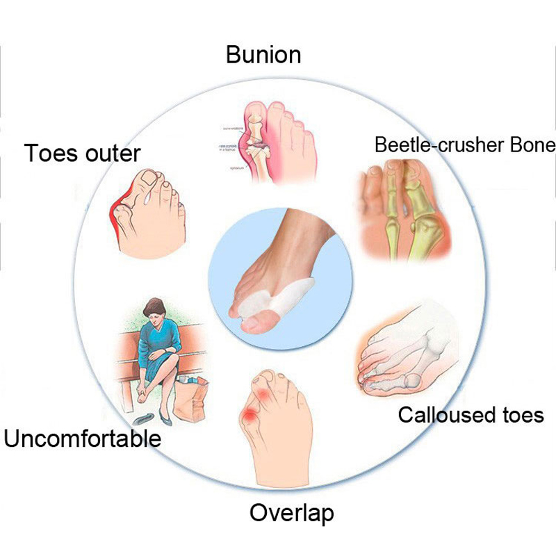 Silicone Gel Bunion Big Toe Separator Spreader Eases Foot Pain Hallux Valgus Correction Guard Cushion Concealer Thumb 1Pair in Foot Care Tool from Beauty Health