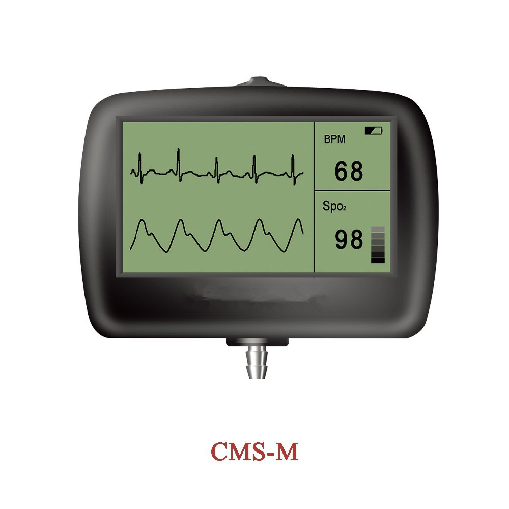 CE TFT 2 7 inch ECG waveform SPO2 Monitor Multi Function Portable digital visual Electronic Stethoscope